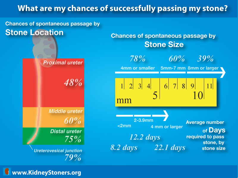 6 Infographics To Help You Avoid A Kidney Stone Attack